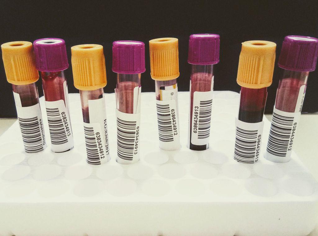 Karmienie naturalne awirus HIV