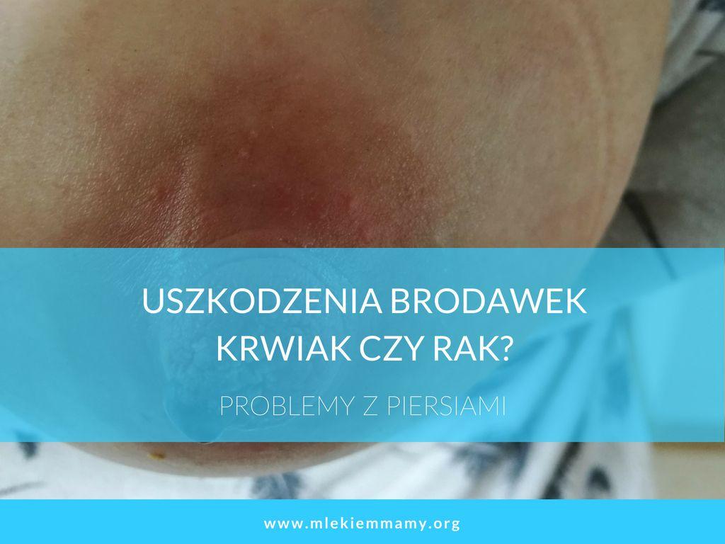 Uszkodzenia brodawek – krwiak czyrak?
